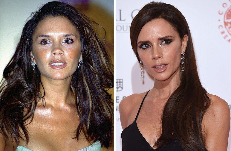 Виктория Бекхэм до и после пластики Фото