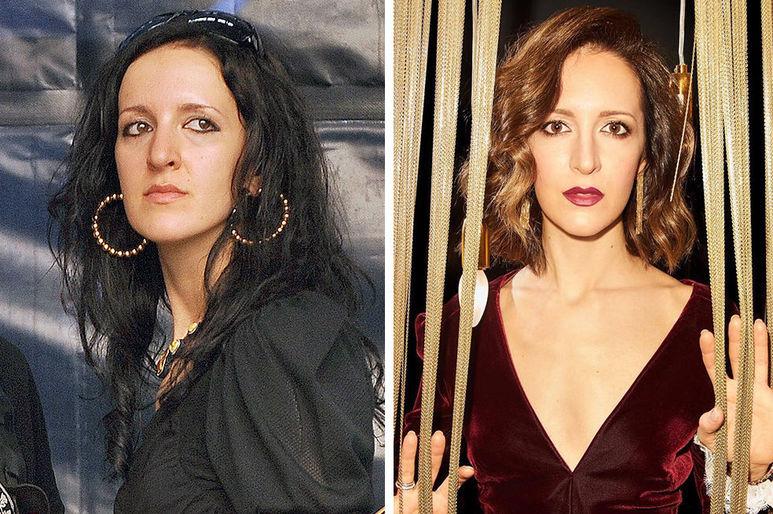 Матильда Шнурова до и после пластики Фото