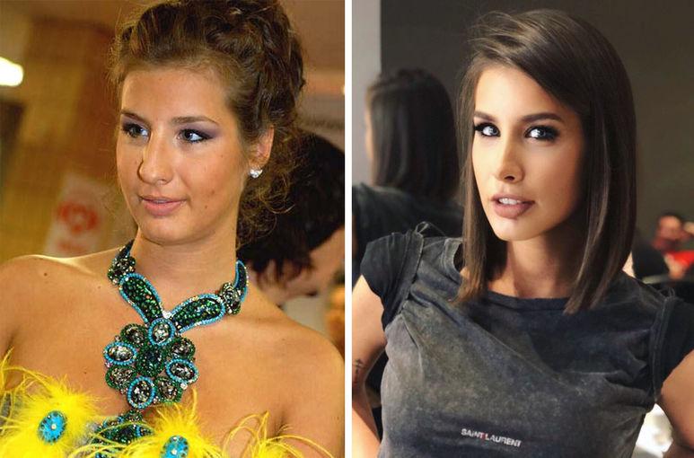 Кети Топурия до и после пластики Фото