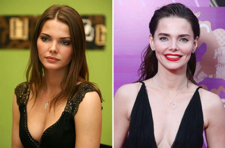 Лиза Боярская до и после пластики Фото